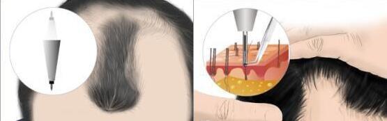 頭發種植提取毛囊會留下痕跡嗎