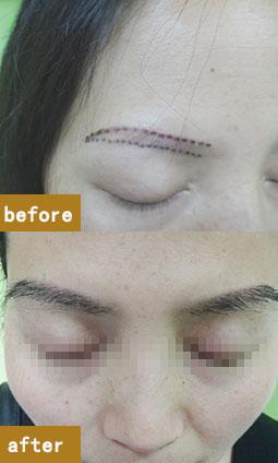眉毛稀少、斷眉、無眉植眉手術來幫你